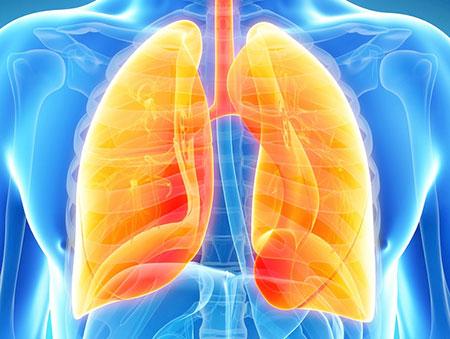 Лечение рака лёгкого в Германии