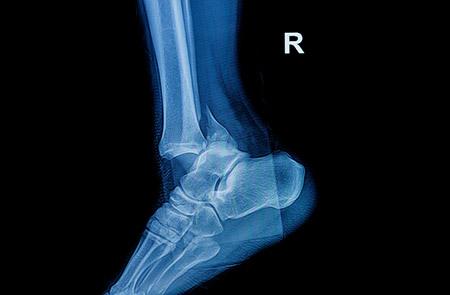 Операции на голеностопном суставе в германии схема коленного сустава