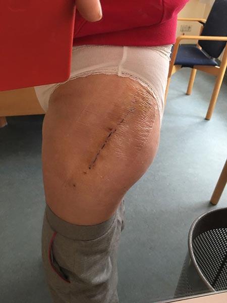 Замена сустава при коксортрозе протезирование тазобедренного сустава вмоскве